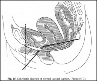 Schematic diagram of normal vaginal support