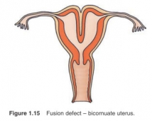Fusion defect - bicornuate uterus